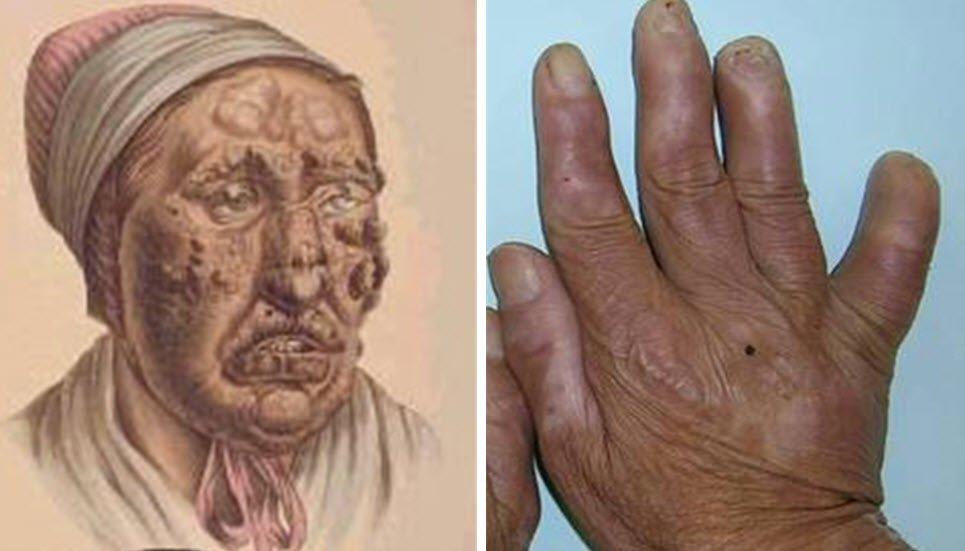 Cüzzam-Hansen hastalığı nedir