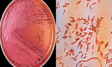 Salmonella enfeksiyonu neden olur