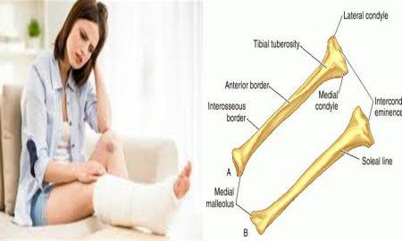 Tibia ağrısı nedenleri ve tedavisi