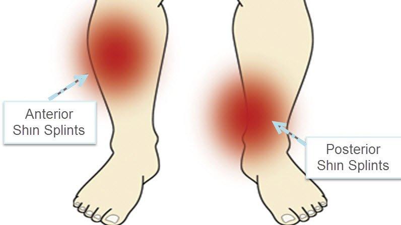 Kaval kemiği tendon iltihabı neden olur