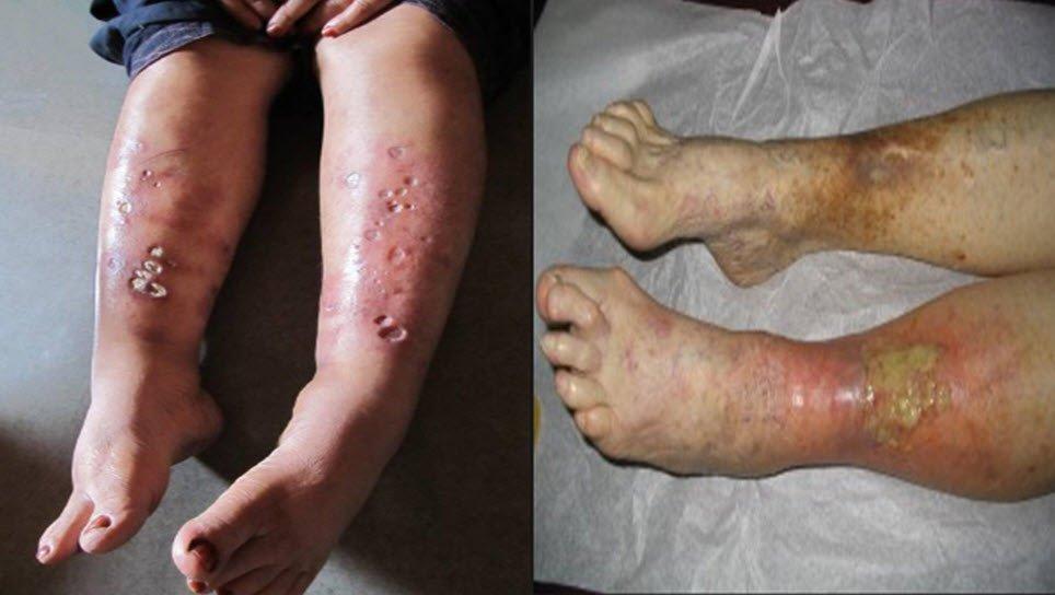 Bacak ülserleri neden olur