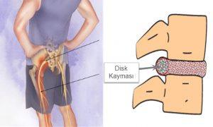 Disk prolapsı nedir