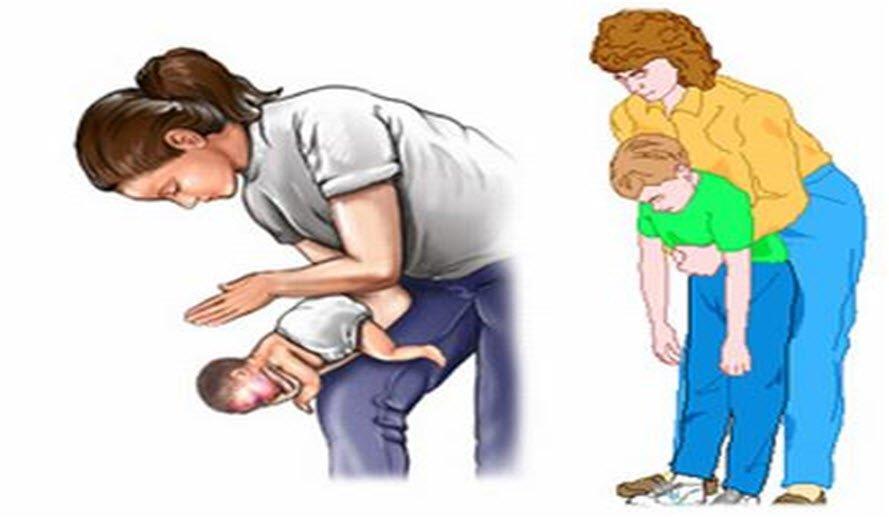 Heimlich manevrası nedir