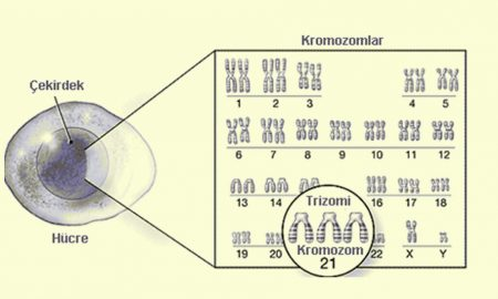 Trizomi nedir