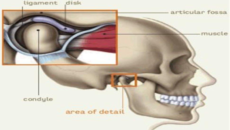 İç kulak kireçlenmesi (Otoskleroz) nedir ve belirtileri nelerdir
