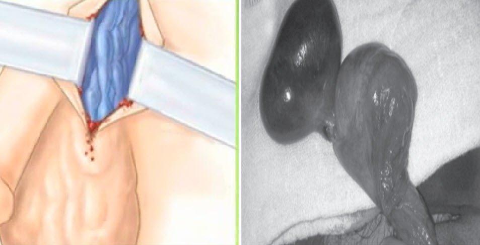 Testis ağrısına neden olan hastalıklar